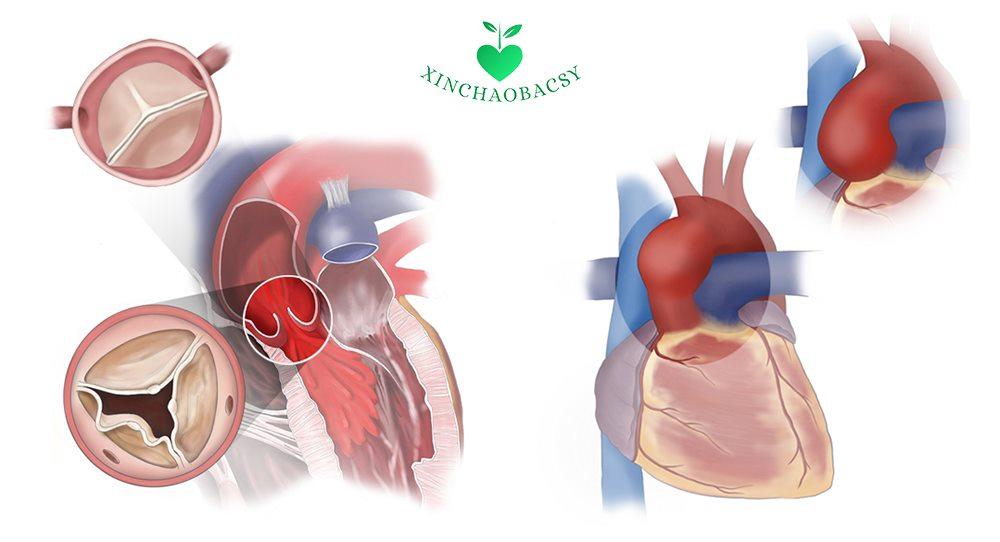 Hở van động mạch chủ – Hướng dẫn điều trị và phòng ngừa biến chứng